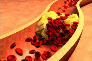 Qué es la dislipidemia causas y consecuencias